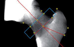 Quantitative computed tomography - Image of proximal femur bone projection