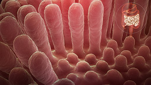 Inflammed mucous layer of the intestinal villi depicting Celiac disease