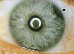 Iridodilaysis - Blunt trauma to the eye.jpg
