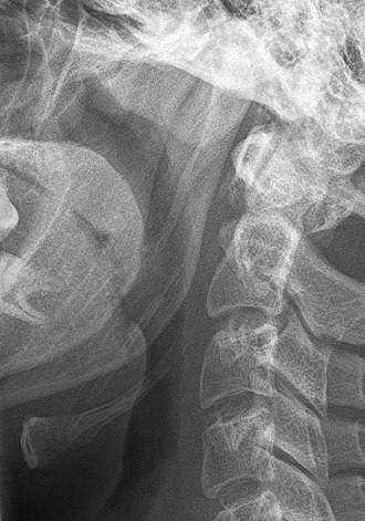 Stylohyoid ligament - Image: Ligamentum stylohyoideum ossifiziert