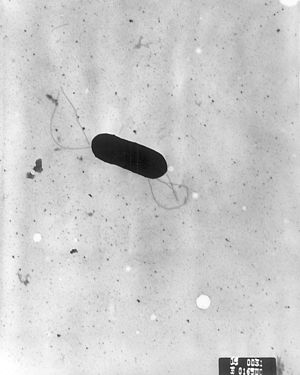 Listeria monocytogenes - Scanning electron micrograph of Listeria monocytogenes.
