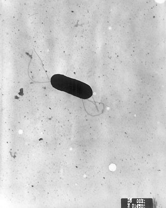 Listeria - Scanning electron micrograph of Listeria monocytogenes.