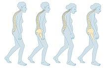 leziune articulară metacarpofangiană dureri articulare baralgin