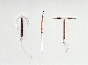 IUD with copper - A variety of IUDs