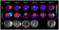 PET scans of brain tumor using Sigma-2 Ligands.png