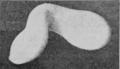 PSM V88 D111 Twin egg monster before development.png