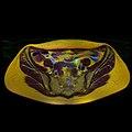 Pelvic MRI 06 20.jpg