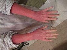 Topical steroid withdrawal - Wikipedia