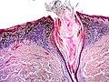 Skin Tumors-P6241254.jpg