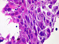 Squamous cell carcinoma 4.jpg