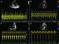 Variations of the velocity across the tricuspid valve.png