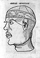 Woodcut of head showing Cerebral ventricles. Wellcome M0000436.jpg