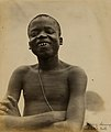 """Pygmy showing mutilated teeth."" (Ota Benga, Pygmy from Belgian Congo in the Department of Anthropology at the 1904 World's Fair).jpg"