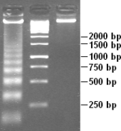 White DNA bands against a dark grey background, resembling the rungs of a ladder