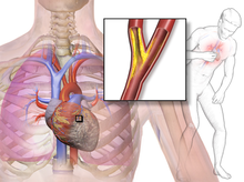 تصویربرداری آنژین صدری