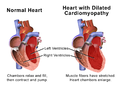 Blausen 0165 Cardiomyopathy Dilated.png