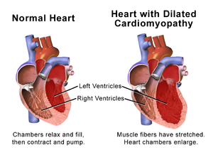 dilated cardiomyopathy - wikipedia, Skeleton