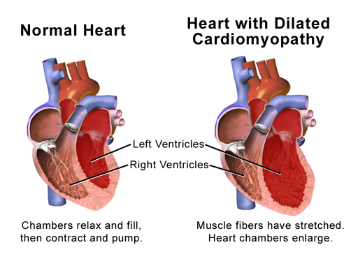 Blausen 0165 Cardiomyopathy Dilated