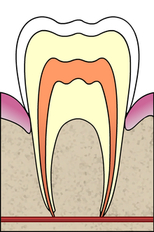 Cavities evolution 1 of 5 ArtLibre jnl.png