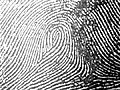 Central Pocket Loop Whorl in a left little finger.jpg