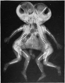 Conjoined X-ray.jpg