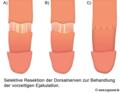Eichel-Denervation Operation gegen vorzeitigen Samenerguss.png