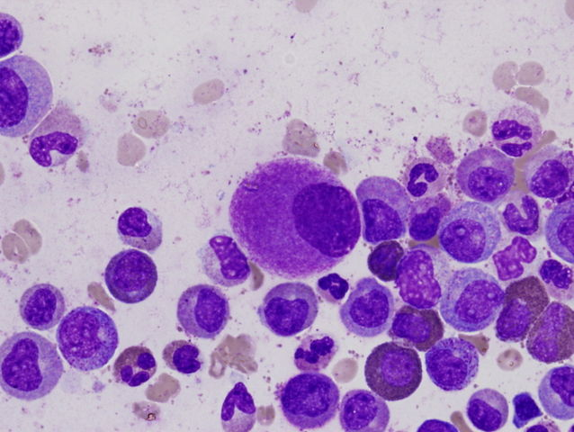 A small, hypolobated megakaryocyte (center of field) in a bone marrow aspirate, typically of chronic myelogenous leukemia. Copyright: Difu Wu - Own work, CC BY-SA 3.0.