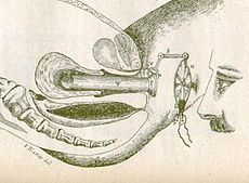 Hysteroscopy1898.jpg