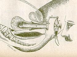 definition of hysteroscopy