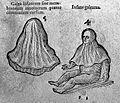 "Illustration of a ""Caul"", Cornelius Gemma, 16th Century Wellcome L0006351.jpg"