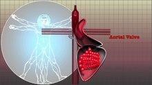 Fichier: MC1 Cardiology 1.webm