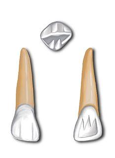 Maxillary lateral incisor