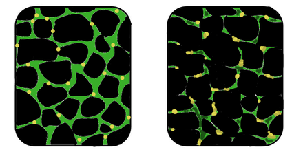In muscular dystrophy, the affected tissues become disorganized and the concentration of dystrophin (green) is greatly reduced. MuscularDystrophy.png