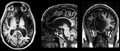 Patient r brain scan.png
