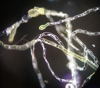 Physcomitrella patens DF (Protonema).jpg