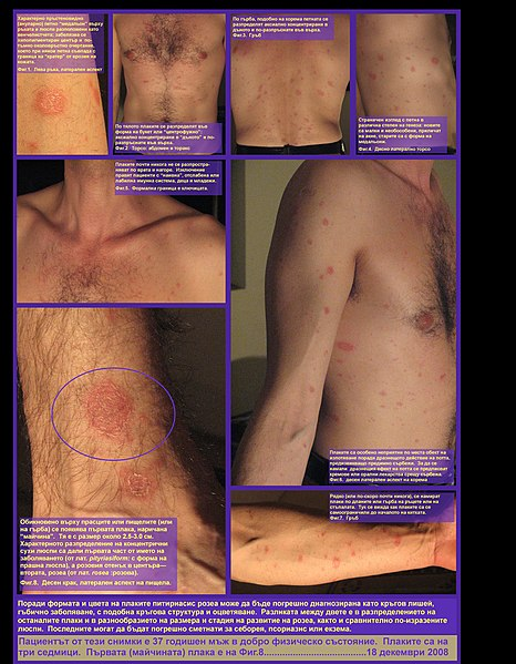 File:Pityriasis rosea-collage.jpg