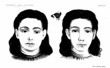 Příznaky Peutz-Jeghersova syndromu na obličeji a rtu