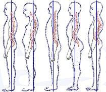 Posture types (vertebral column).jpg