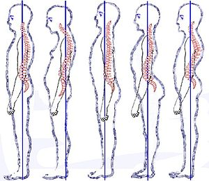 English: Posture types (vertebral column) clas...