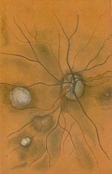 The fine blood vescles seen at the back of the eye are drawn in red and dark blue on an sandy-coloured background. There are four white blobs of various sizes, one behind and one in front of the blood vescles.