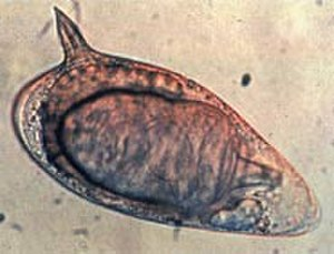 Schistosoma mansoni - A Schistosoma mansoni egg with the characteristic lateral spine