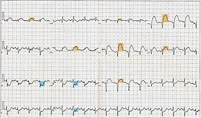 12 Lead EKG ST Elevation tracing color coded.jpg