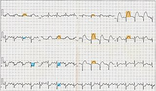 Electrocardiography in myocardial infarction