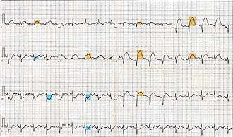 ST elevation - 12-lead electrocardiogram showing ST-segment elevation (orange) in I, aVL and V1-V5 with reciprocal changes (blue) in the inferior leads, indicative of an anterior wall myocardial infarction.