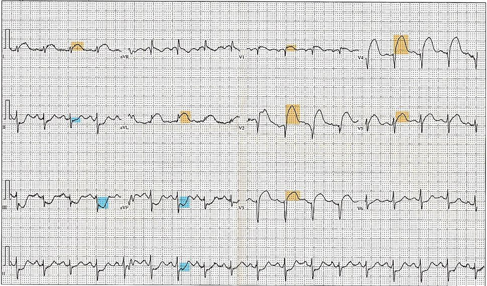 12 Lead EKG ST Elevation tracing color coded