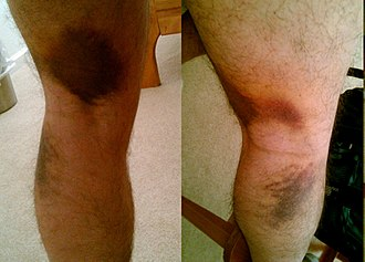 Pulled hamstring - Two images of the same strain. One of the pictures was shot through a mirror.