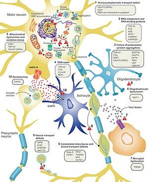 ALS disease pathology proposed mechanisms