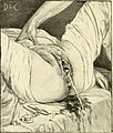 A textbook of obstetrics (1899) (14591265730).jpg