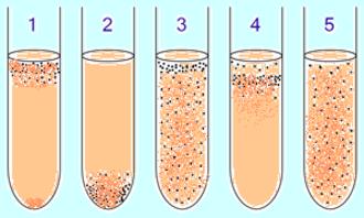 Anaerobic organism - Image: Ana