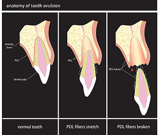 Dental avulsion - Image: Avulsion